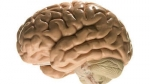 Waterige hersenen